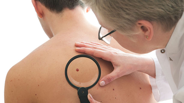Doctor checking mole of patient