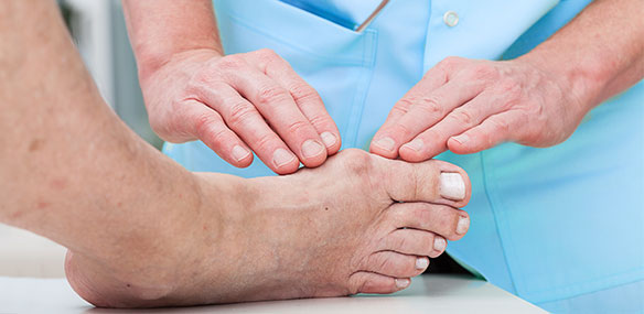 Doctor checking bunion on foot